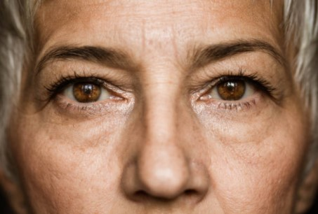 Signs of Glaucoma